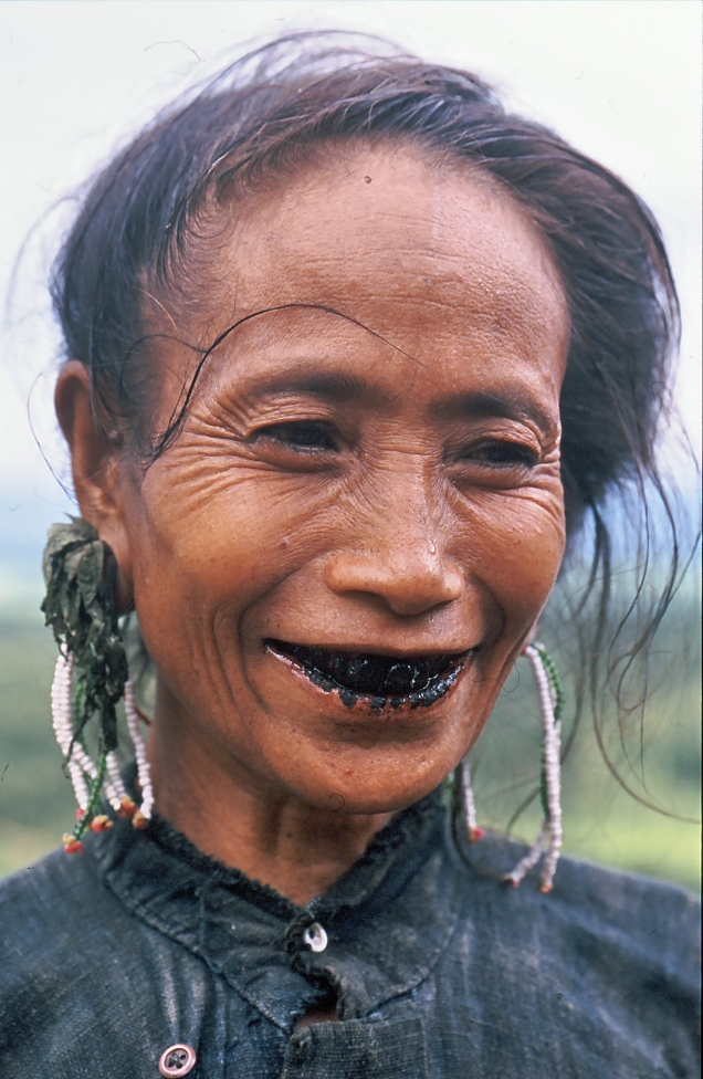 donna denti neri 1